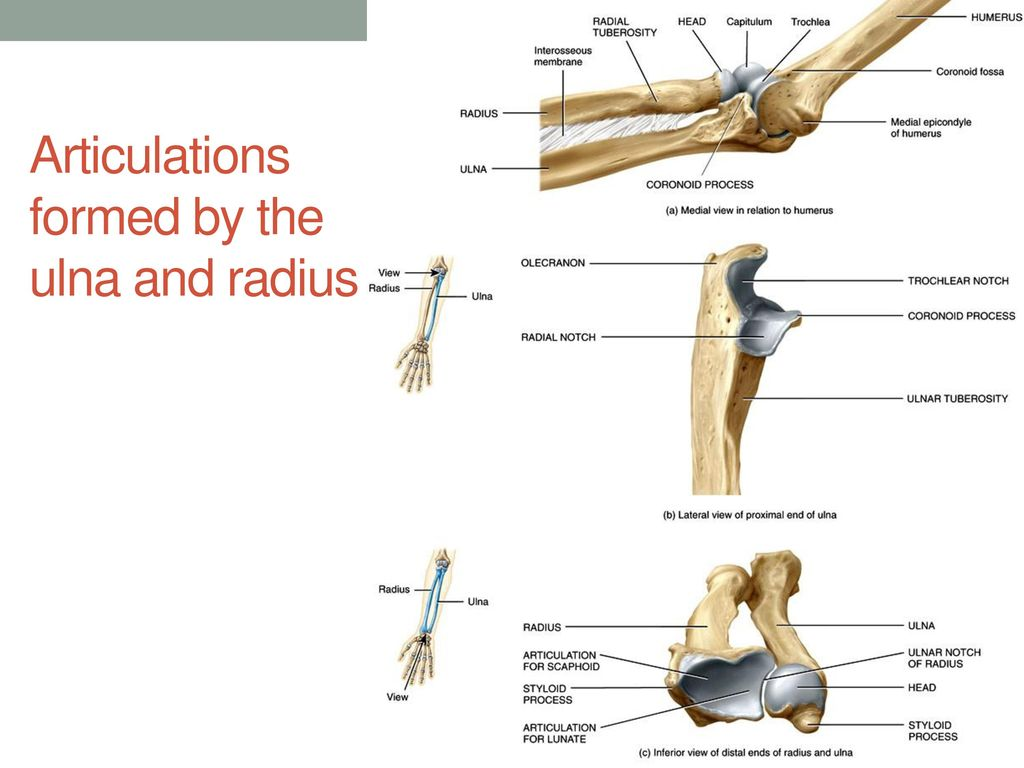 Right Ulna And Radius In Relation To The Humerus And Carpals Ppt