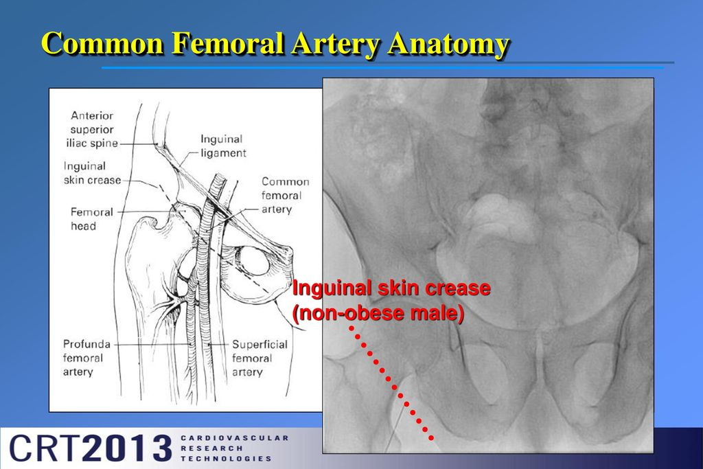 Antegrade Femoral Artery Access Ppt Download