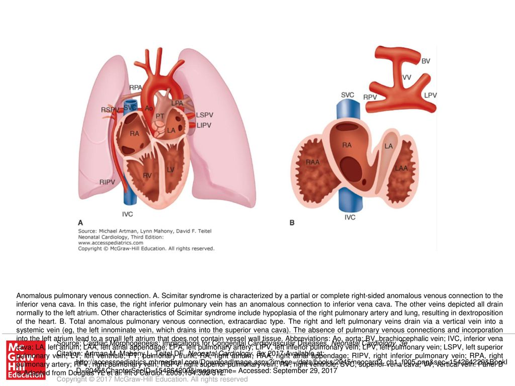 Anomalous pulmonary venous connection. A - ppt download