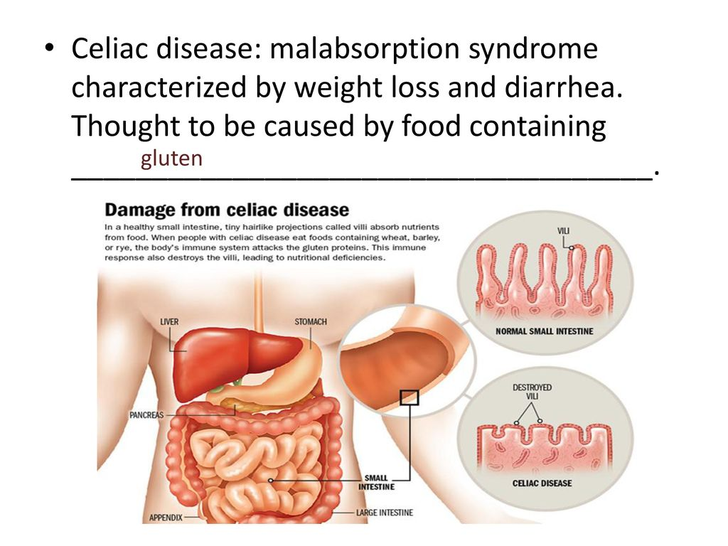 Single Celiac
