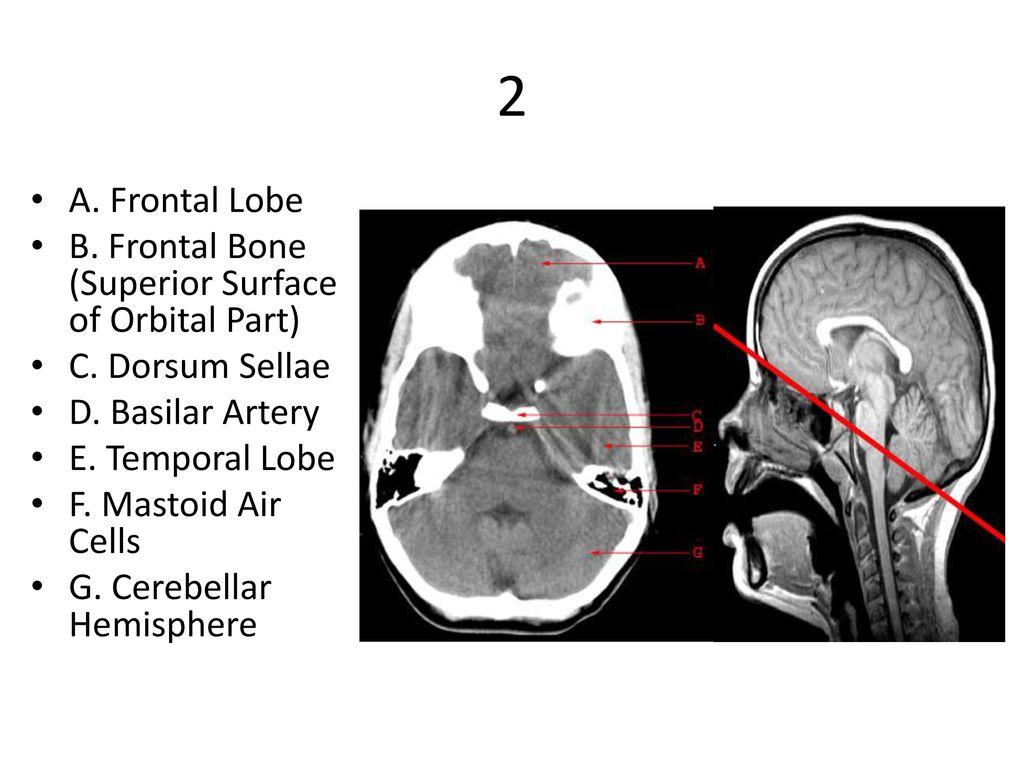 1 A. Orbit B. Sphenoid Sinus C. Temporal Lobe - ppt download