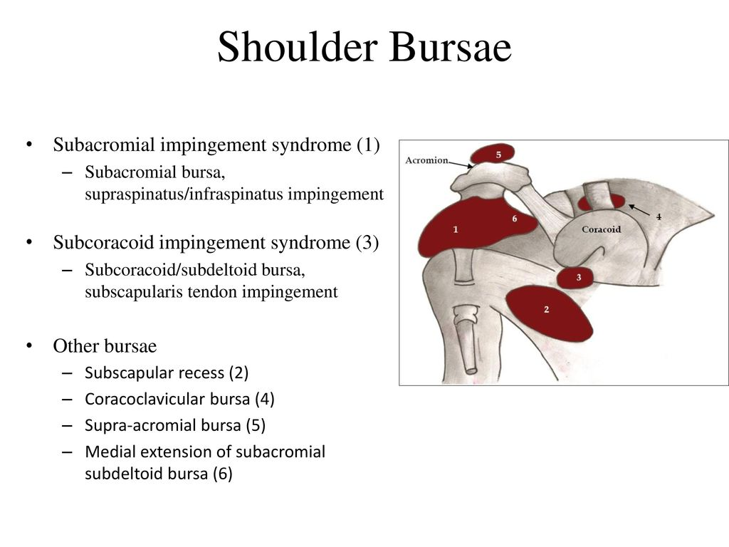 impingement syndrome case study and soap Case study 5: impingement syndrome, male, 28 years old good health state, practising power lifting sport almost every day, compete at the national level frequent injury, primary of the overuse nature.