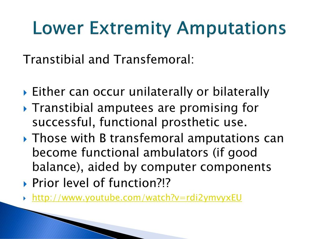 Amputations - ppt download