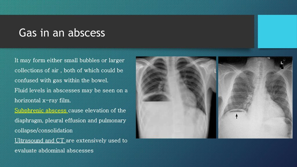 Plain Abdominal Radiography Ppt Download