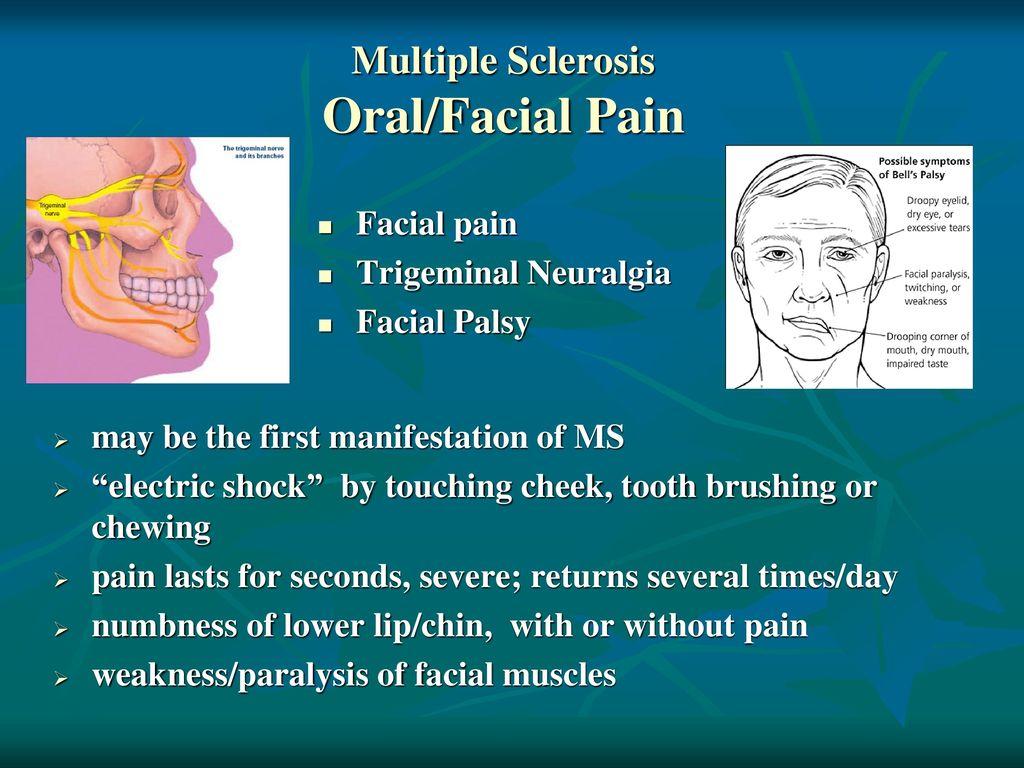 Videos nude facial weakness multiple sclerosis