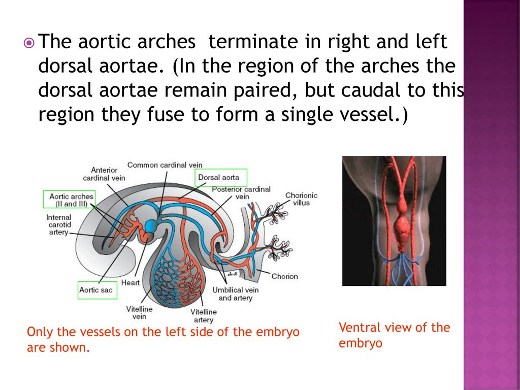 Development of the AORTIC ARCHES - ppt download