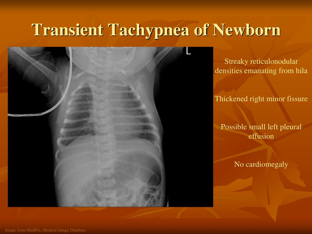Chest Radiography for the NICU - ppt download