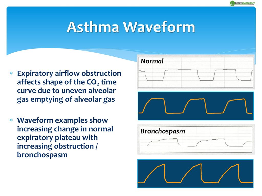 "Continuous Capnography ~ The ""Wave"" of the Future - ppt download"