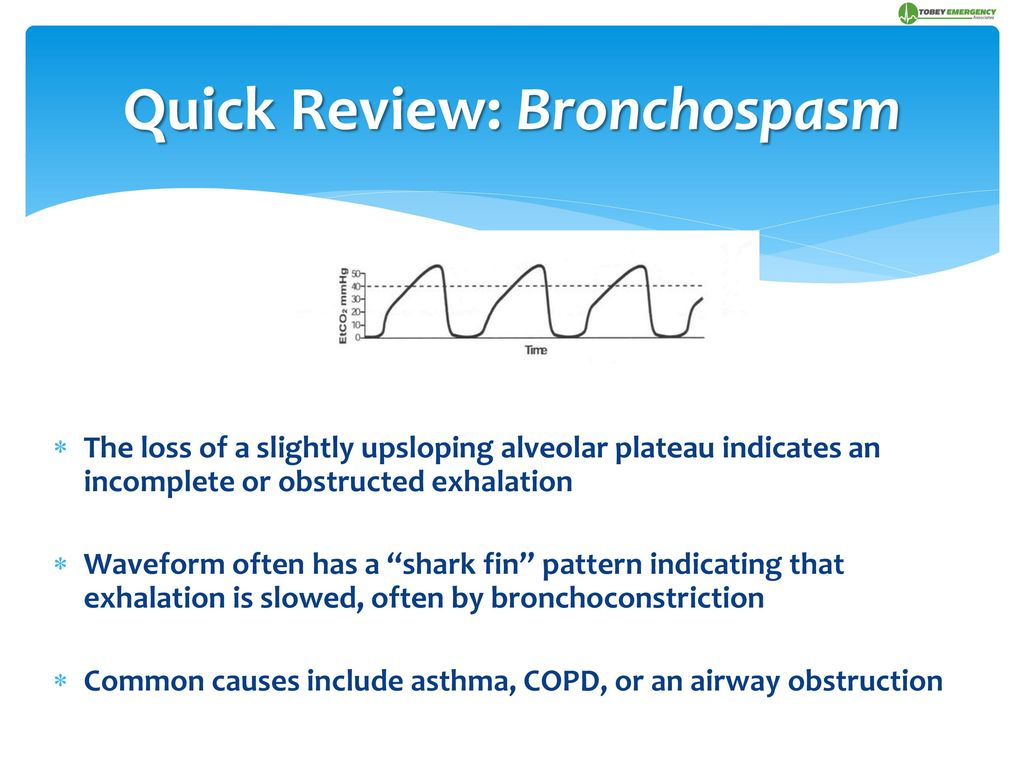 """Continuous Capnography ~ The """"Wave"""" of the Future - ppt download"""