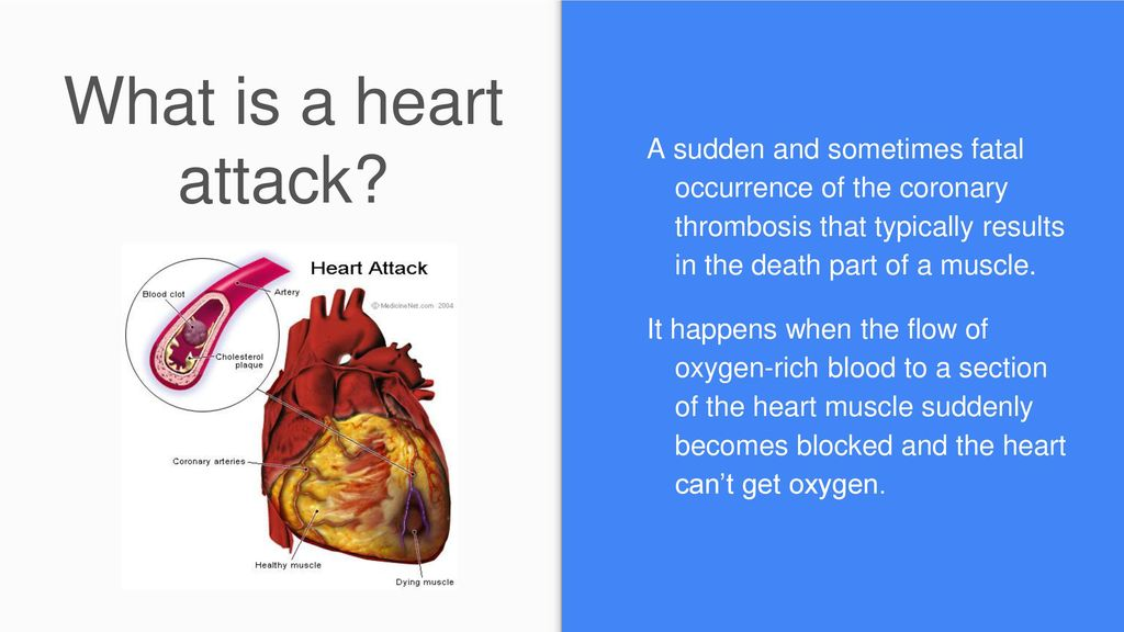 Heart Attack By: Taylor. - ppt download