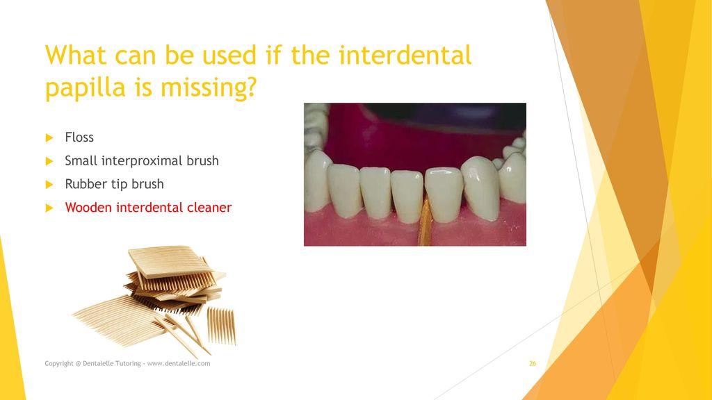 Interdental Care Dentalelle Tutoring Ppt Download