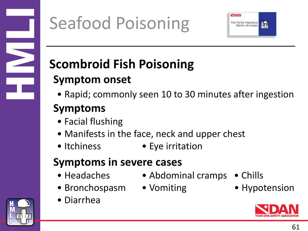 Symptoms of fish poisoning and first aid 81