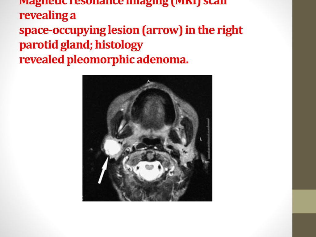 Disorders of Salivary glands - ppt download