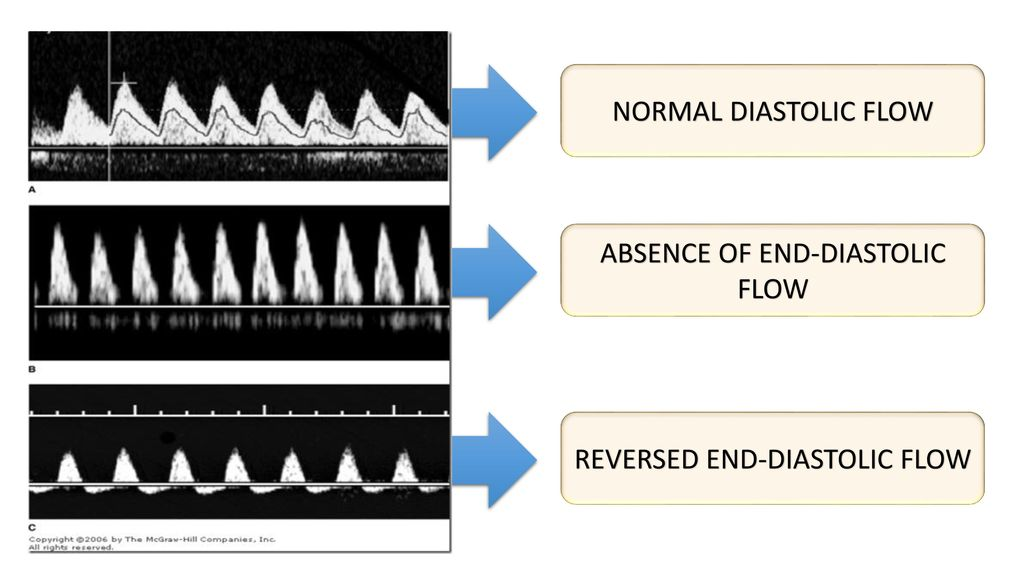 ABSENCE OF END-DIASTOLIC FLOW