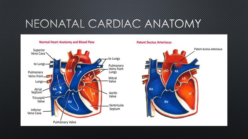 Neonatal Cardiac Assessment Ppt Download