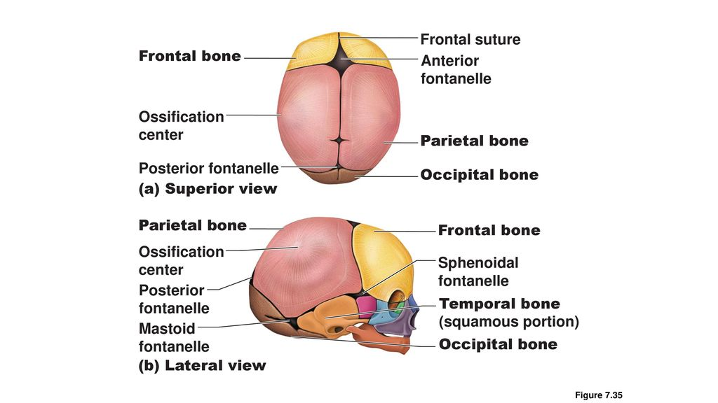 Developmental Aspects: Fetal Skull - ppt download