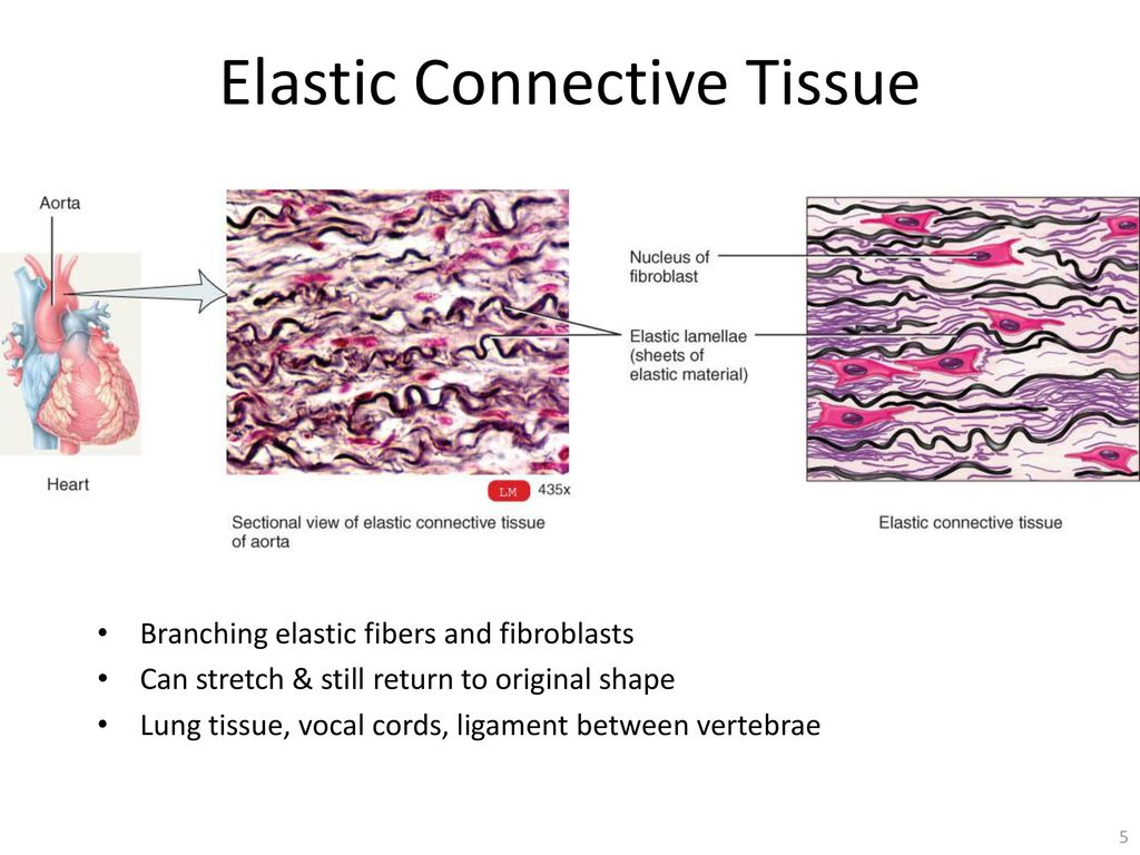 dense connective tissue - ppt download