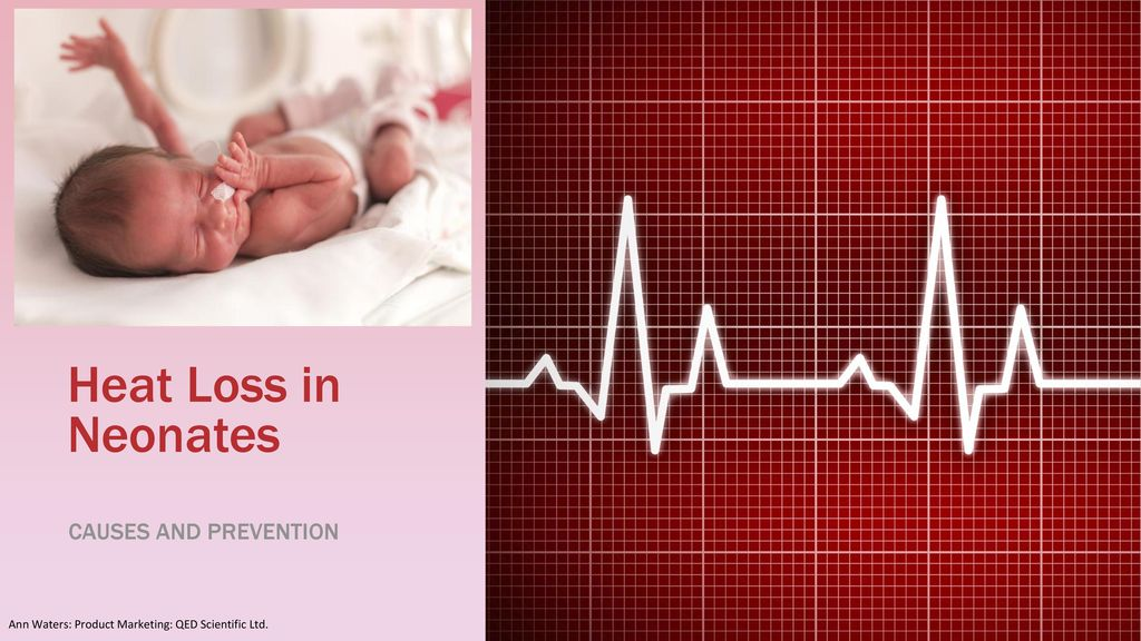 Heat Loss in Neonates Causes and Prevention 1 - ppt download e78730c8e