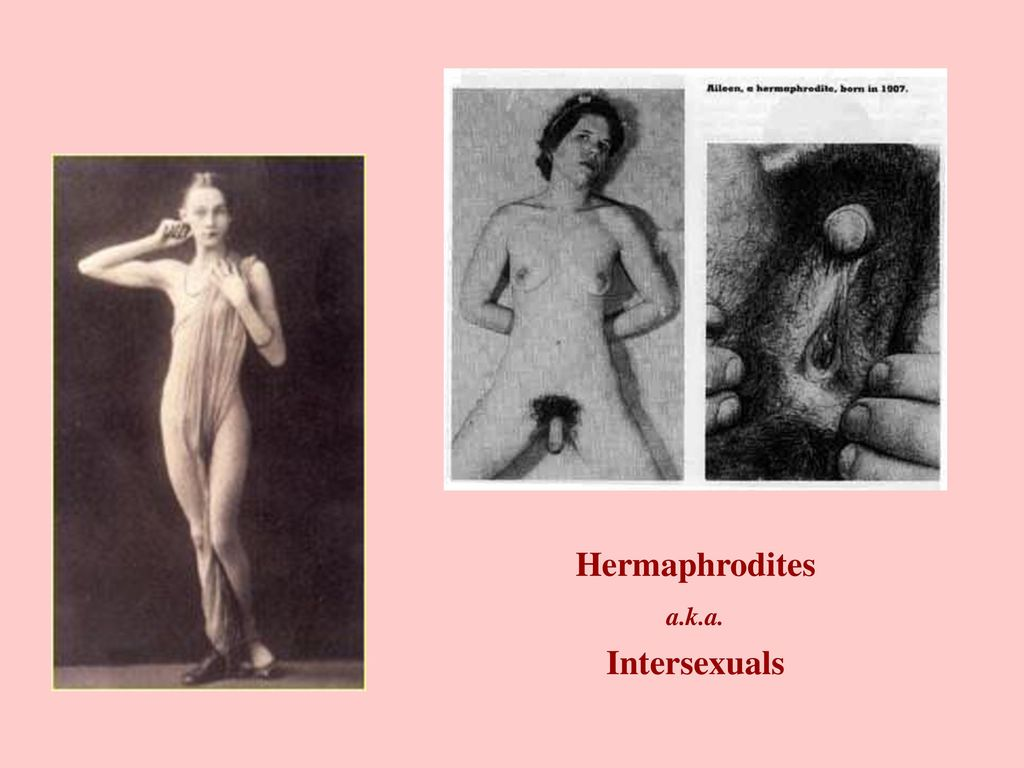 Intersexuals pictures