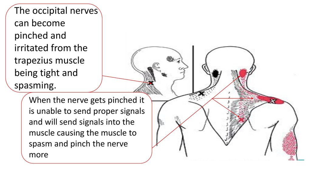 Nerve trapezius pinched Pinching of