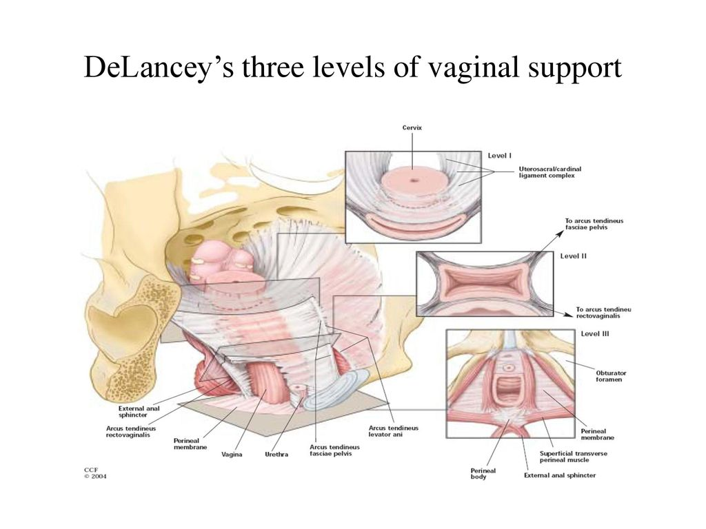 Joint report on terminology for surgical procedures to treat pelvic organ prolapse