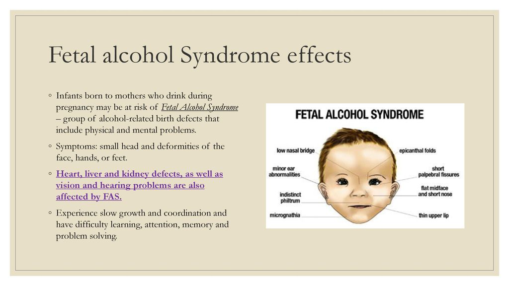 Think, facial deformaties of fetal alcohol syndrome the