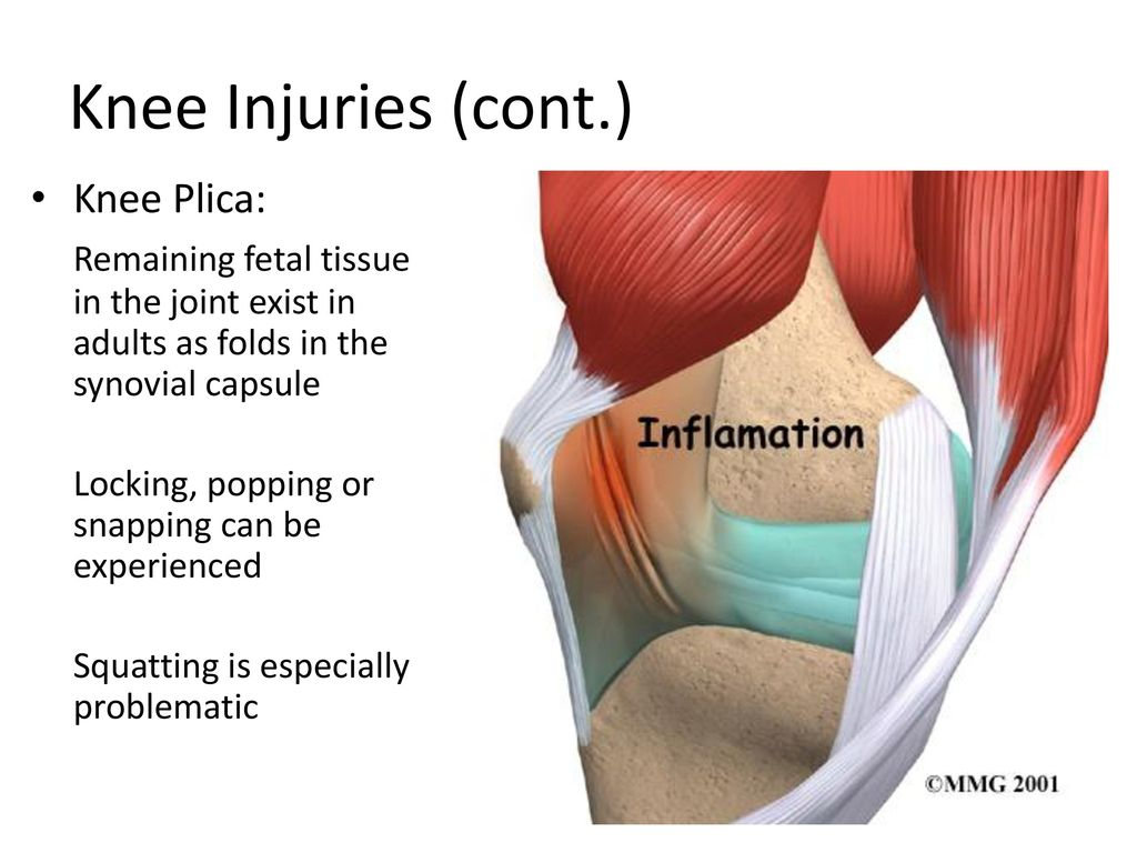 Common Knee Injuries. - ppt download