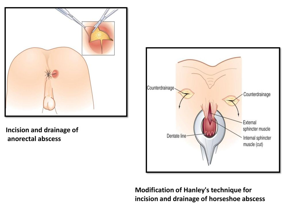 What causes an anal abscess