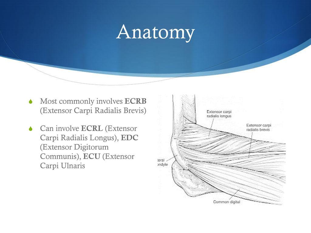 Lateral Epicondylitis - ppt download