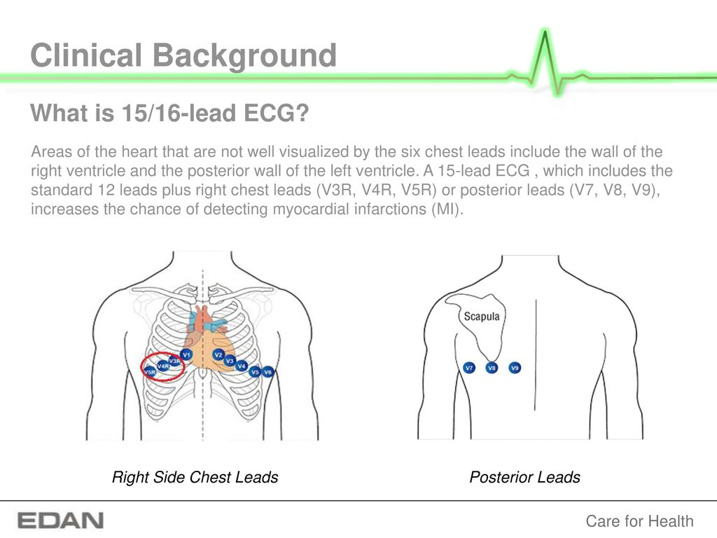 EDAN SE-1515 PC ECG An electrocardiogram (ECG) is a test