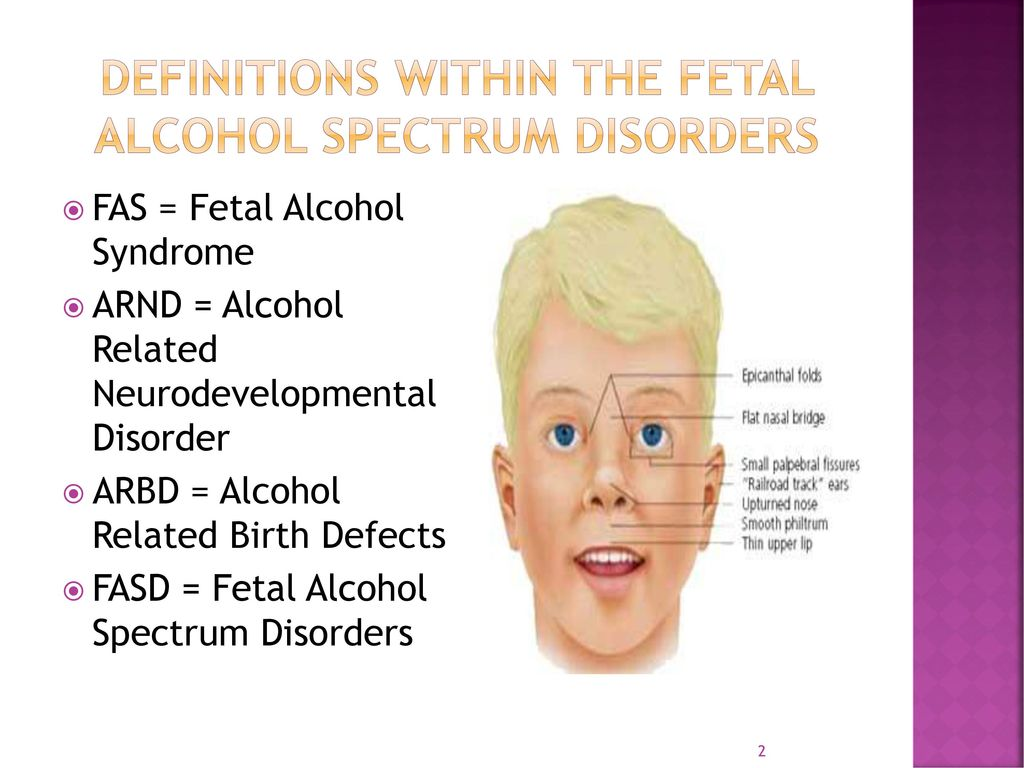uploaded-fetal-alcohol-spectrum-disorders-facial-pictures-wome-and-gansta