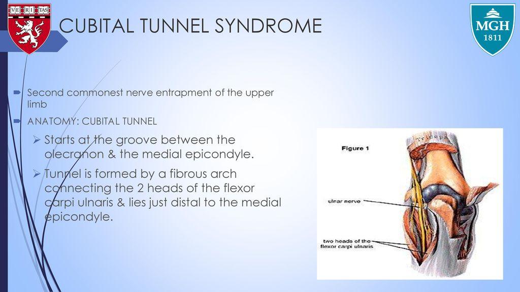 PERIPHERAL NERVE INJURIES - ppt download