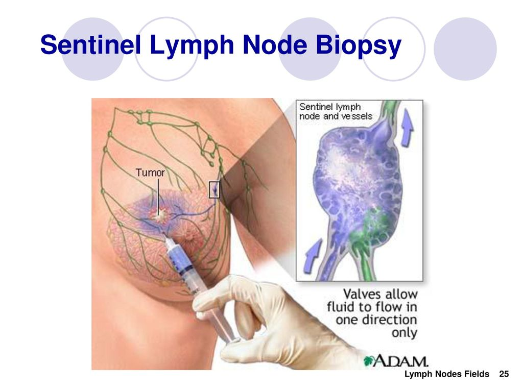 In the Know About Lymph Nodes Fields - ppt download