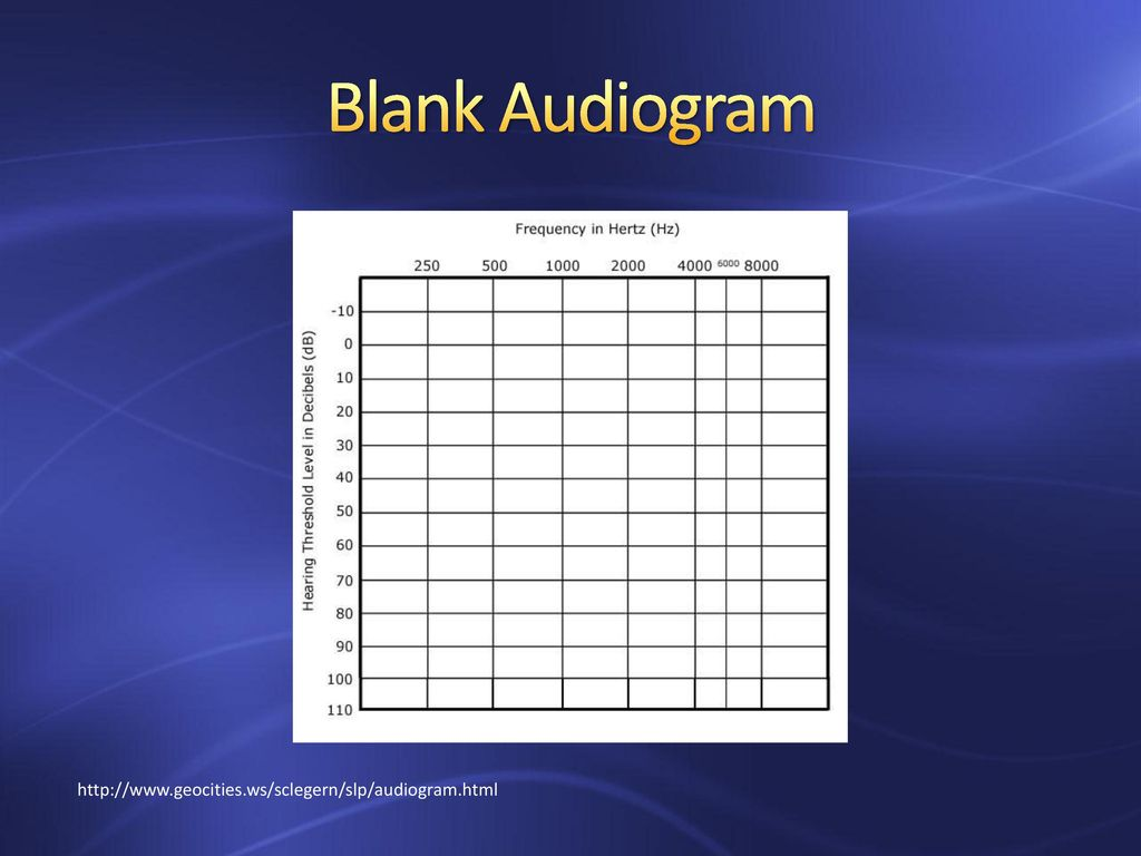 Genetics of Hearing Loss - ppt download Intended For Blank Audiogram Template Download