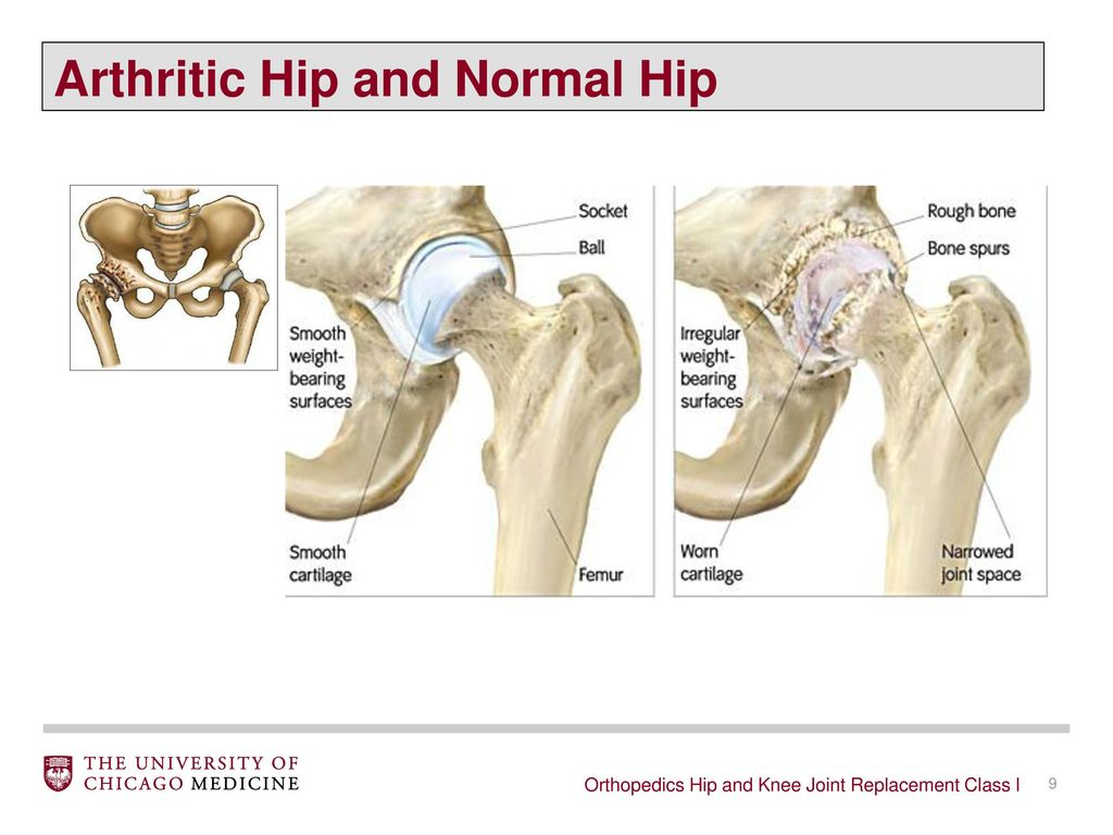 Orthopaedics Hip and Knee Joint Replacement Class - ppt download