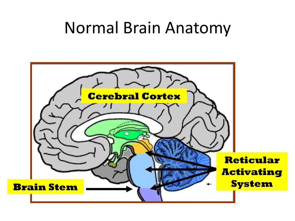 Brain Death Clinical Evaluation Ancillary Tests P Sariaslani