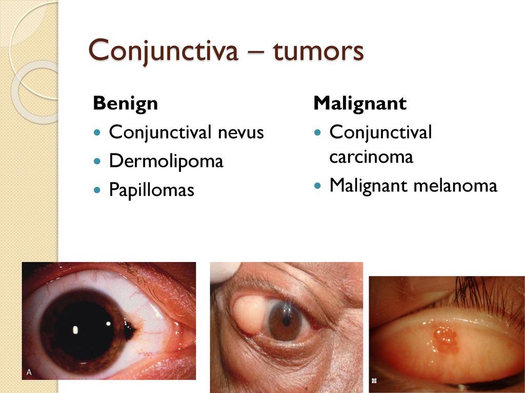 Tumors of eye  - ppt download