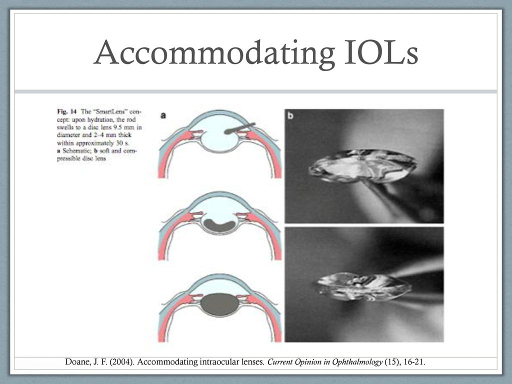Accommodating iol lenses in india