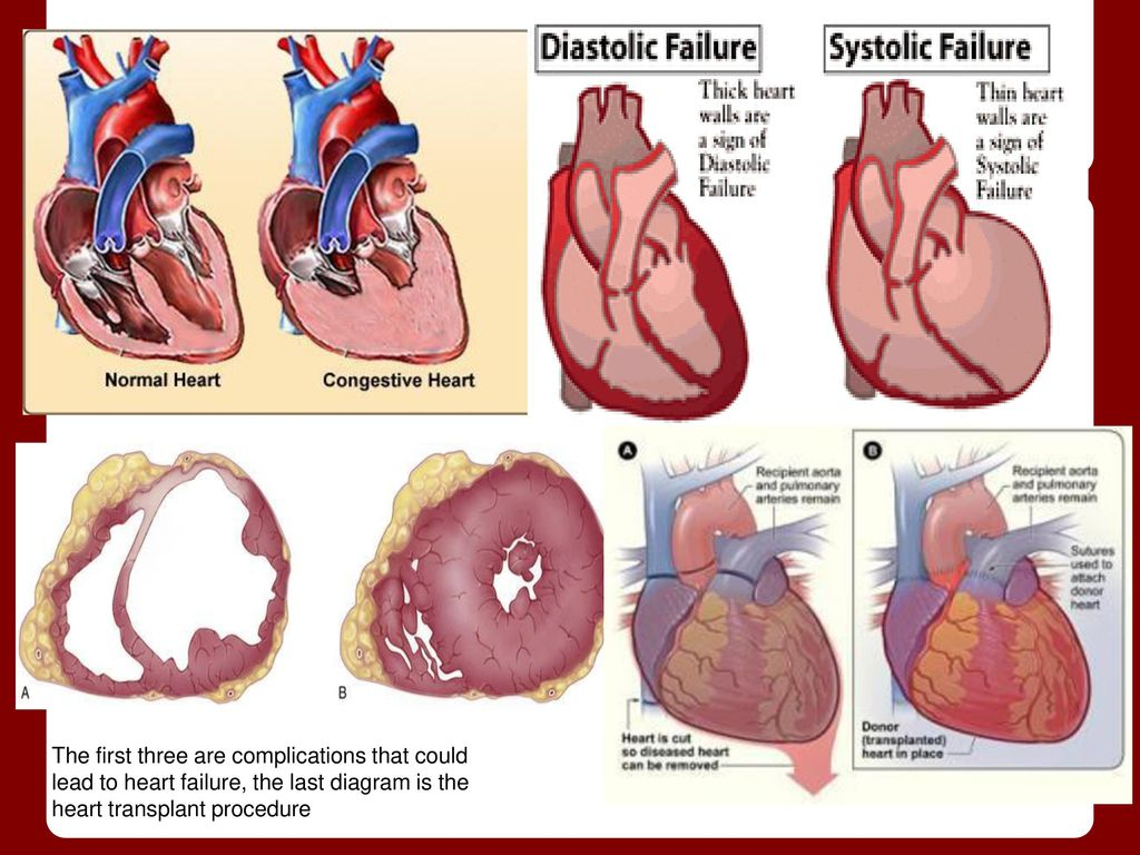 Soul mate real time non invasive heart data ppt download 4 damage ccuart Choice Image