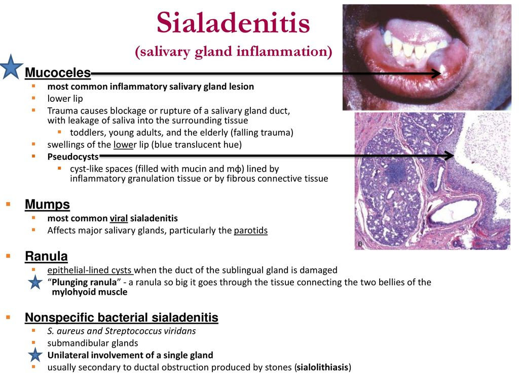 Cialadenitis (salivary gland inflammation): causes, clinical presentation and treatment 25