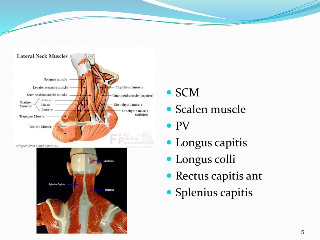 NECK and UPPER EXTREMITY PAIN - ppt download