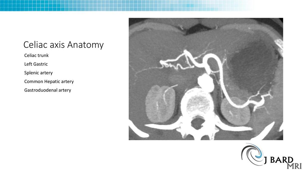 Median Arcuate ligament syndrome - ppt download