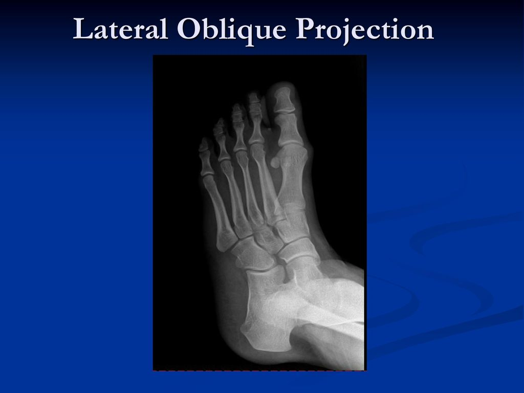 Radiographic Positioning Of The Foot Ankle Ppt Download