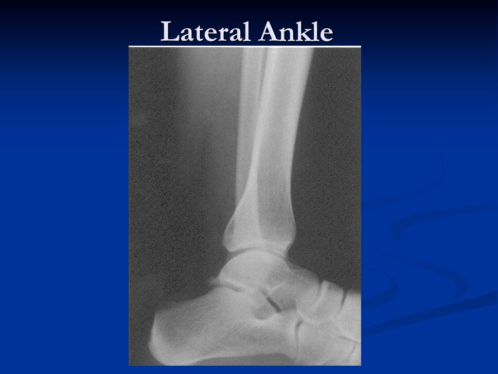 Radiographic Positioning of the Foot & Ankle - ppt download