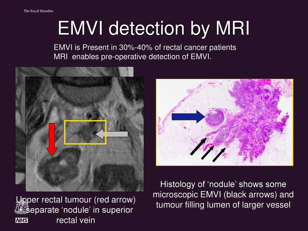 Extramural Venous Invasion In Rectal Cancer Ppt Download