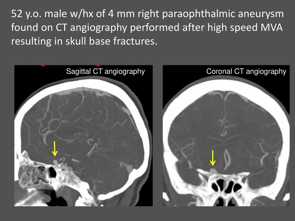 Neuroradiology of Stroke and Headaches - ppt download