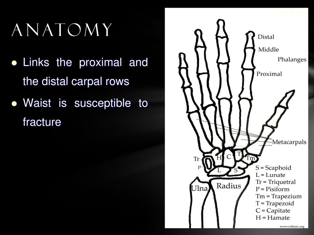 Scaphoid Fractures: A Comparison of Two Surgical Methods Using ...