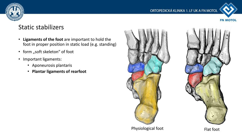 Flat foot Anatomy and current treatment - ppt download