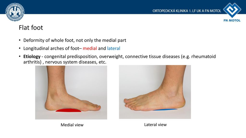 Flat Foot Anatomy And Current Treatment Ppt Download