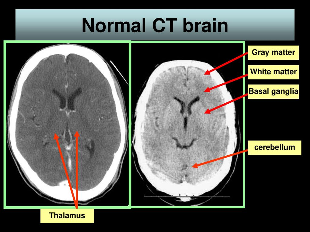 Imaging of the CNS. - ppt download